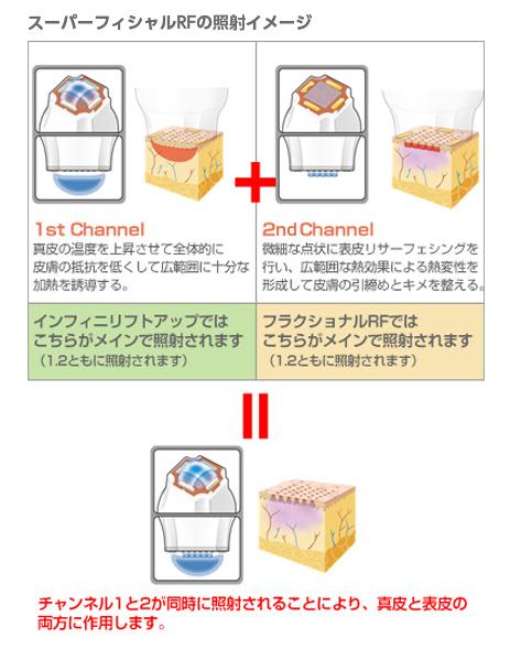 スーパーフィシャルRFの照射イメージ 1st Channel:真皮の温度を上昇させて全体的に皮膚の抵抗を低くして広範囲に十分な加熱を誘導する。+2st Channel:微細な点状に表皮リサーフェシングを行い、広範囲な熱効果による熱変性を形成して皮膚の引締めとキメを整える。=チャンネル1と2が同時に照射されることにより、真皮と表皮の両方に作用します。(インフィニリフトアップでは1st Channelがメインで照射されます/フラクショナルRFでは2st Channelがメインで照射されます)